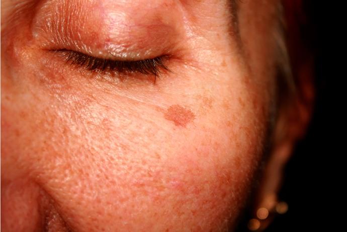 Como substituir a hidroquinona no tratamento de hiperpigmentação cutânea?