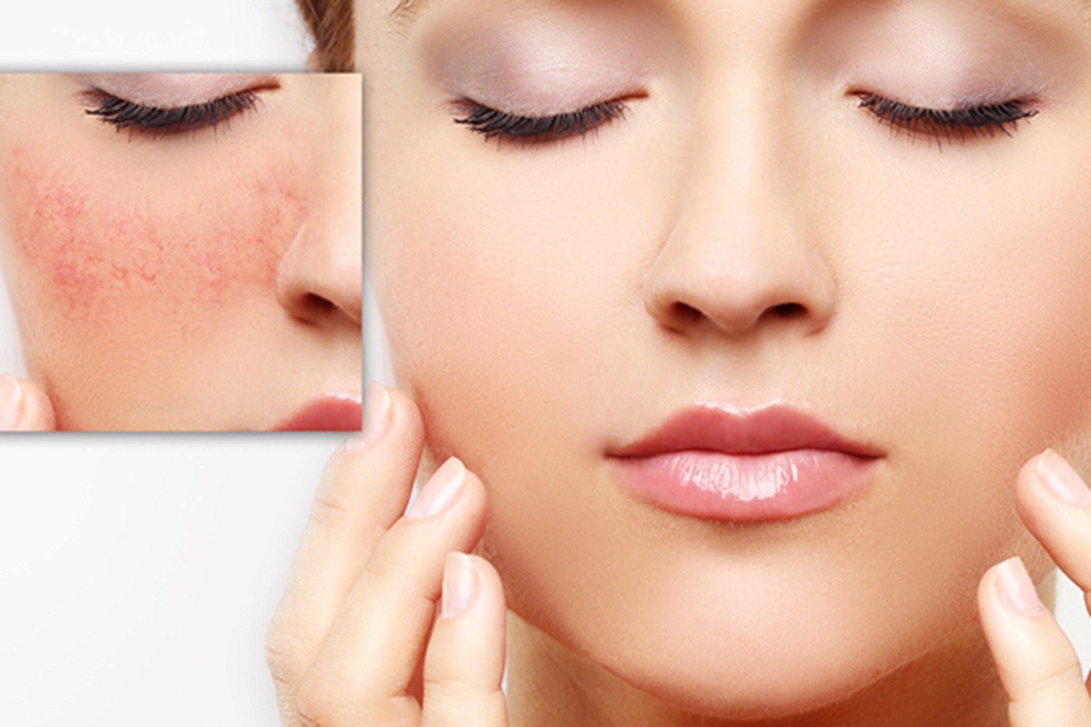 Associação Tópica de Niacinamida e Ácido Tranexâmico Reduz Hiperpigmentação Facial