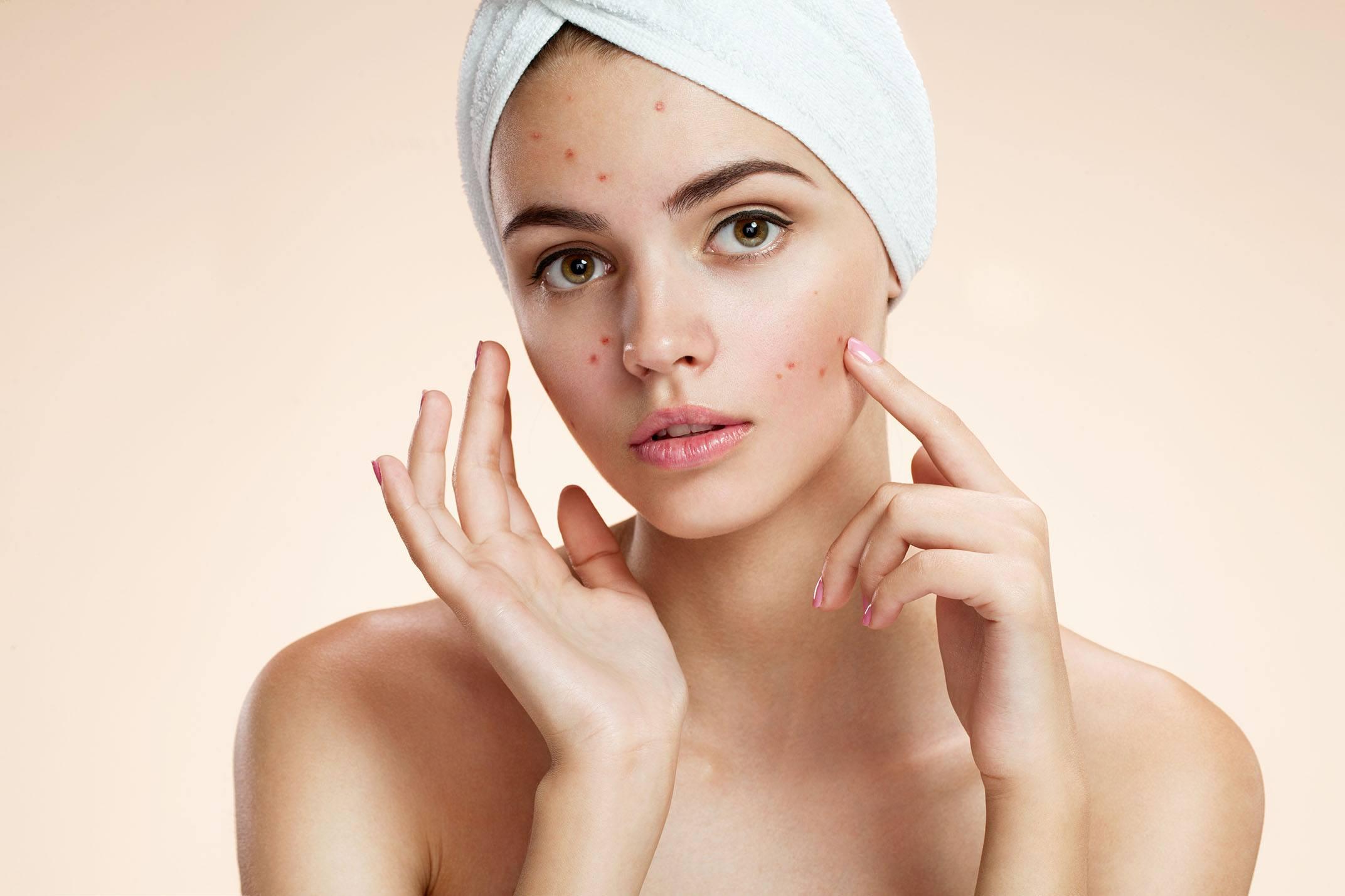 Peeling de Ácido Salicílico é Mais Eficaz na Acne Não-inflamatória do que Solução de Jessner