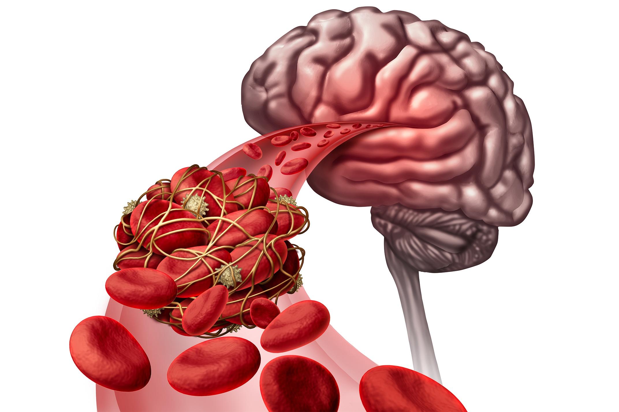 Suplementação de Silimarina Melhora os Níveis de Antioxidantes e Marcadores do Estresse Oxidativo em Pacientes Diabéticos