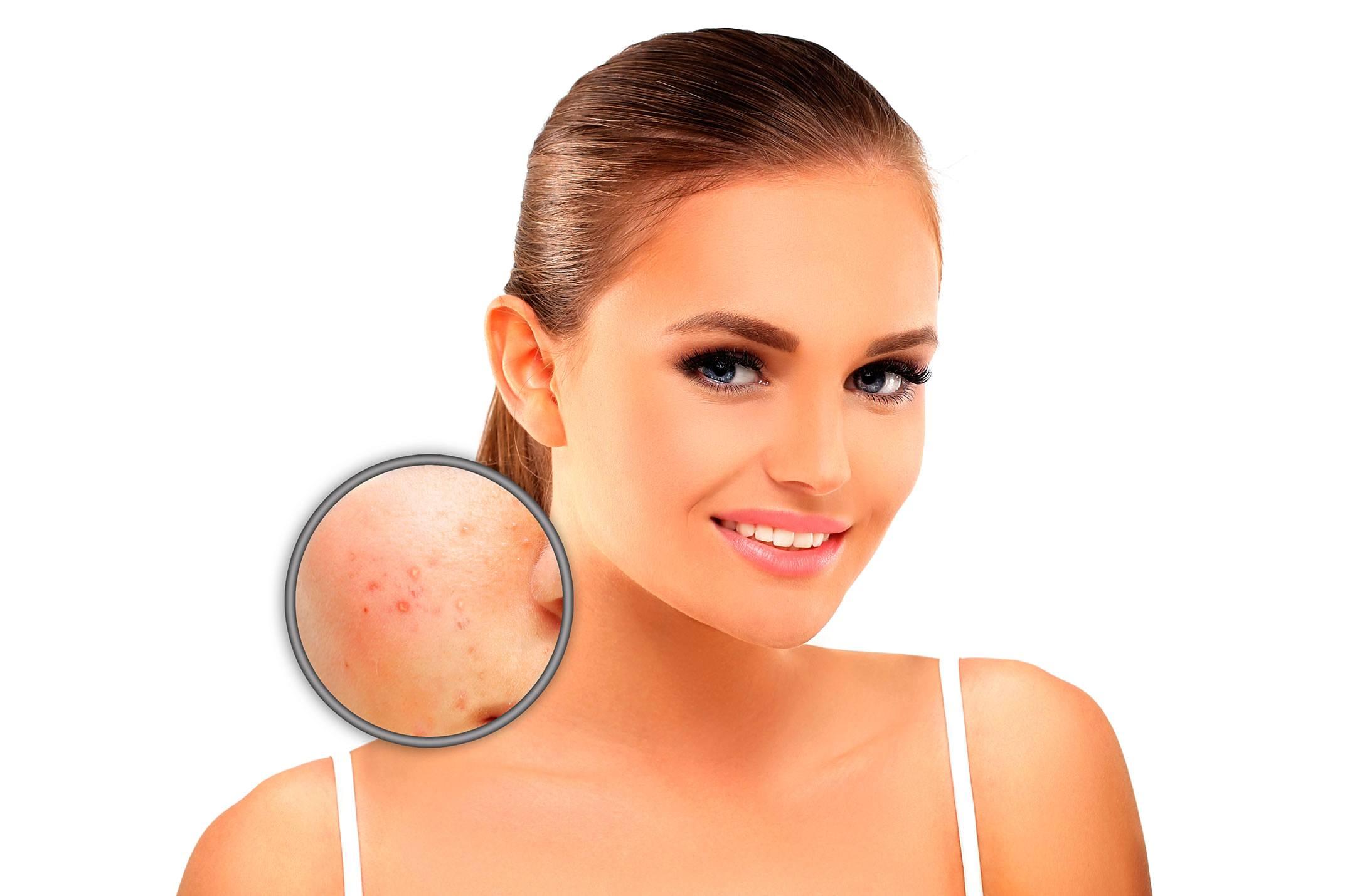 Espuma de Ácido Azeláico é Eficaz no Tratamento da Rosácea Papulopustulosa