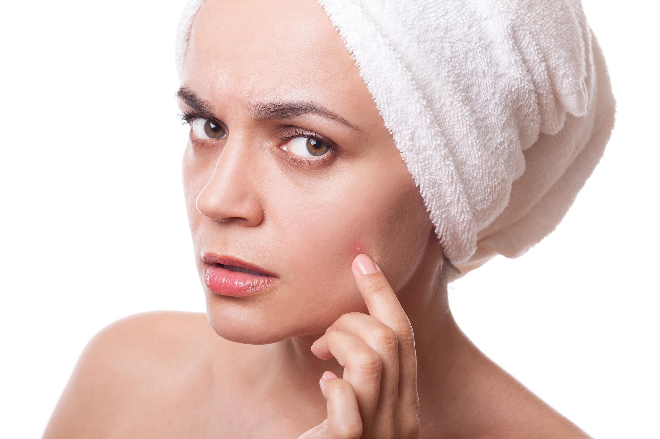 Extrato de Chá Verde é Eficaz no Tratamento da Acne em Mulheres Adultas
