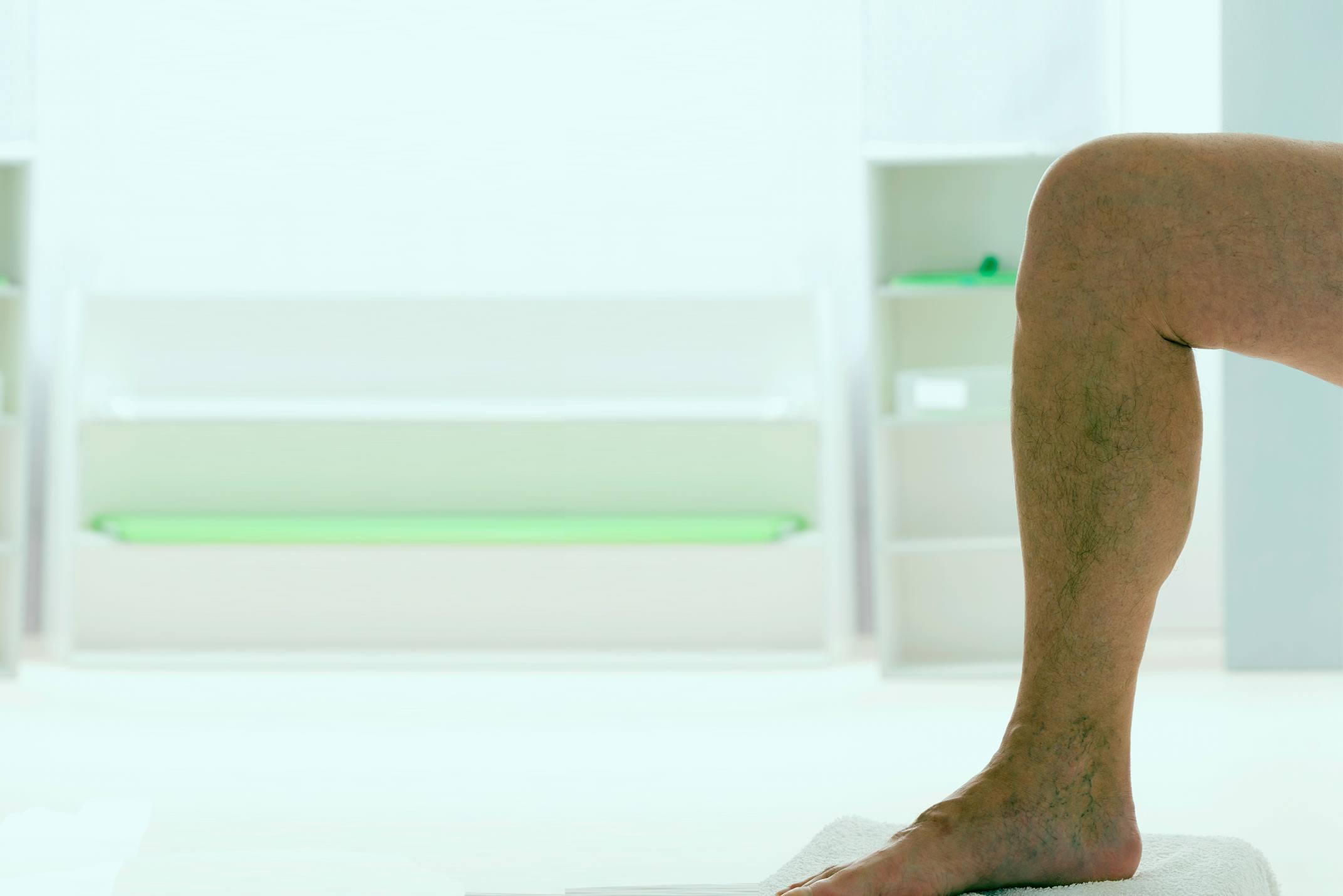 Escleroterapia Com Glicose: A Solução Para os Vasinhos que Surgem nas Pernas