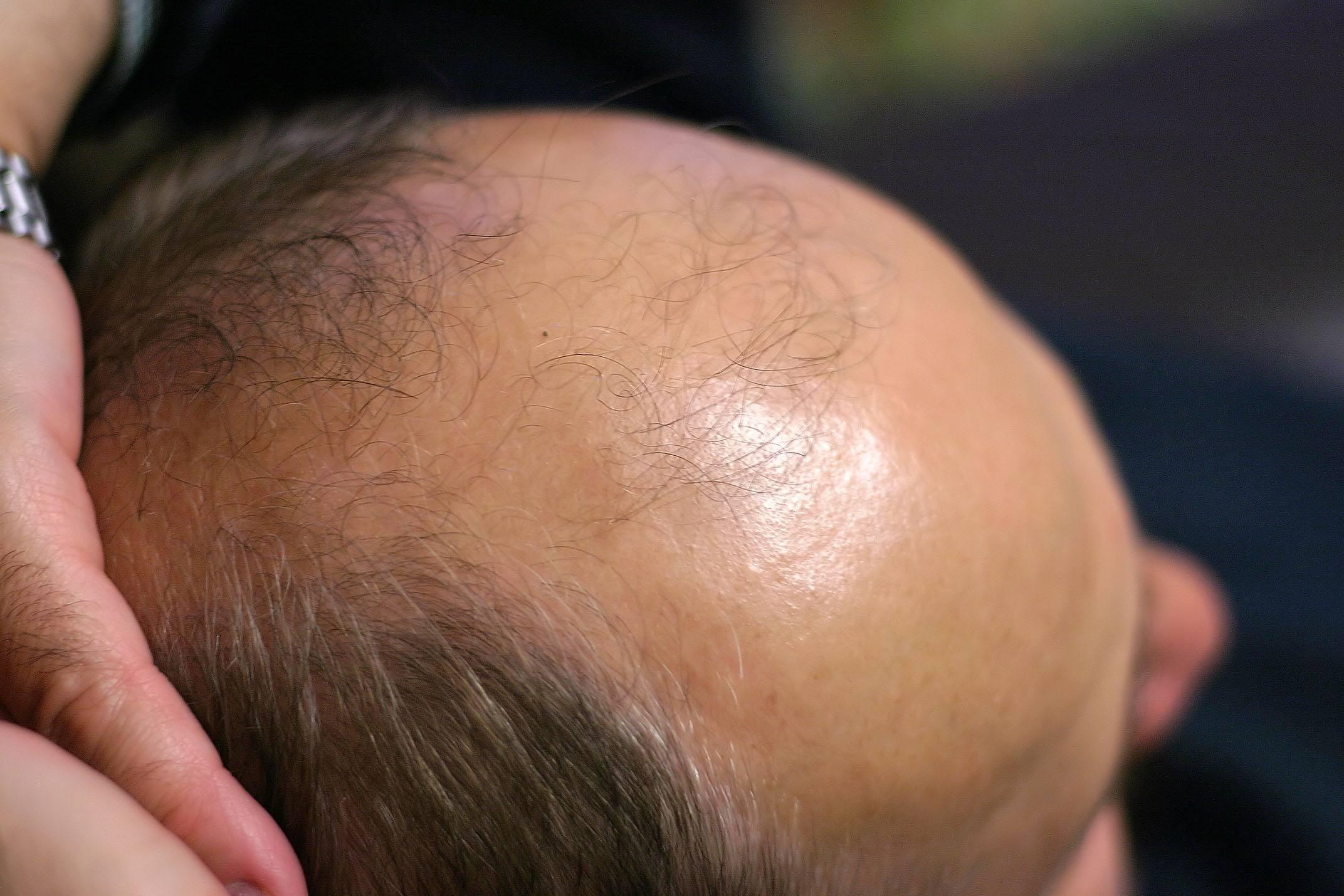 Dutasterida é Superior à Finasterida no Tratamento da Alopecia Androgenética Masculina