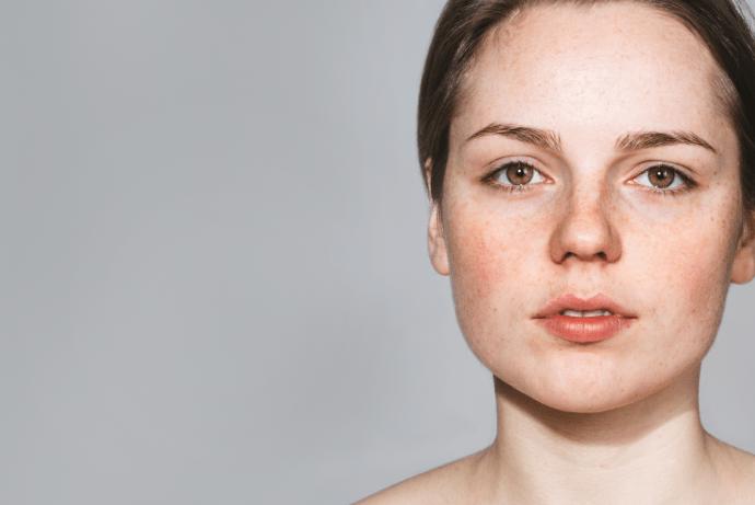 Probióticos nas doenças de pele