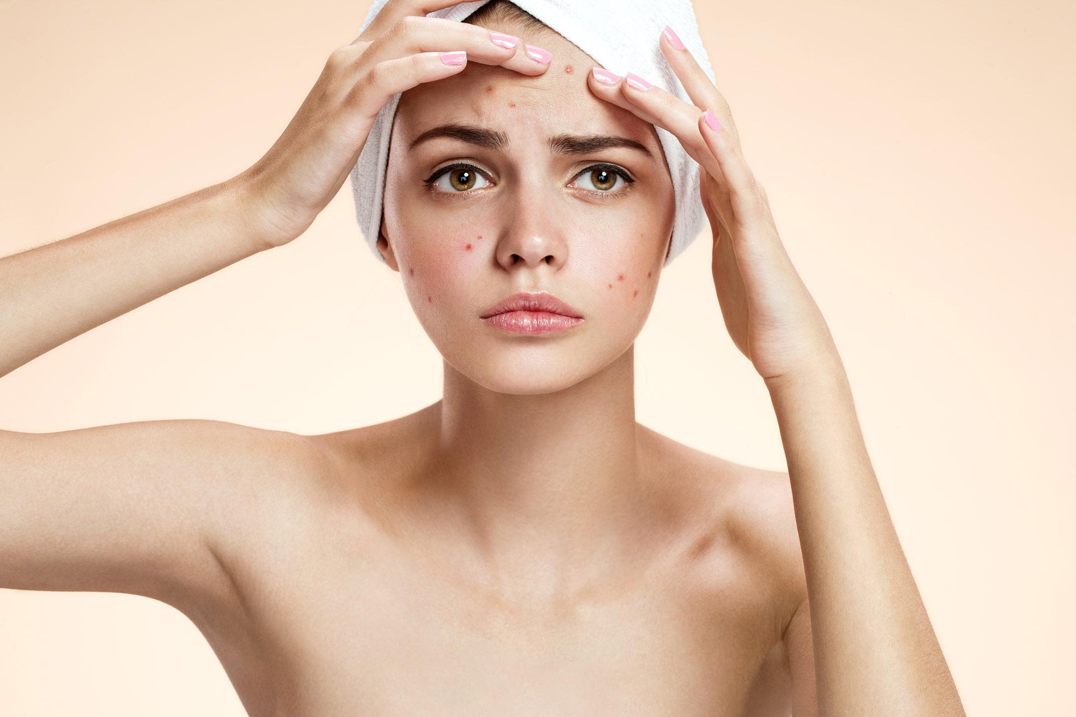 Nova Formulação é Eficaz e Segura no Tratamento da Acne Leve a Moderada